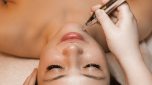 microneedling-injection-and-infusion-clinic-abq